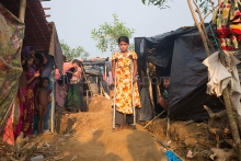 PALONGKHALI, UKHYA, COX'S BAZAR, BANGLADESH- SEPTEMBER 26, 2017: Maksuda 12 injured by bullet of Myanmar Army.Thousands of Rohingyas still crossing the border between Myanmar and Bangladesh after the Burmese army started an operation against the Rohingyas, by burning and destroying their home in the Rakhine state of Myanmar, as now more than 410,000 Rohingyas crossed the border and the United Nations expect the number rises to 1 million by the end of the year.